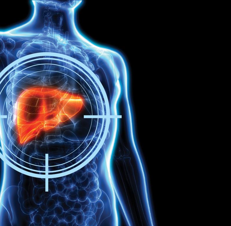 Pancreatic cancer hepatic encephalopathy. Pancreatic Cancer Treatment anemia 2